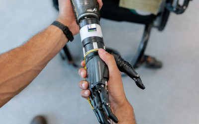 robotic-hand-prosthetic-3912979